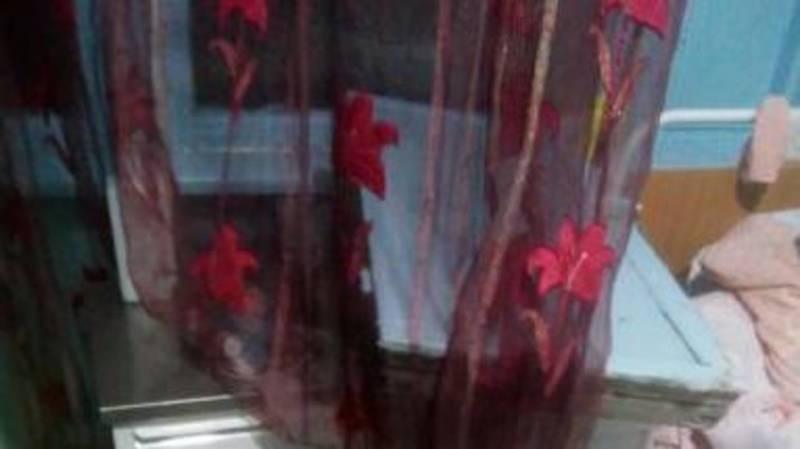 В 3-й детской больнице оконная рама упала на кровать пациентки (добавлено фото)